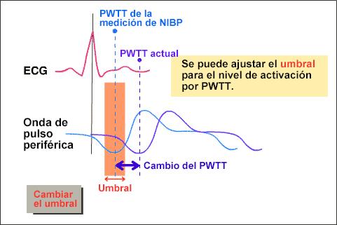 Onda de la presión arterial